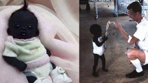 Is This The 'Darkest Baby In The World'?