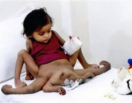 Indian Girl Born With Eight Limbs