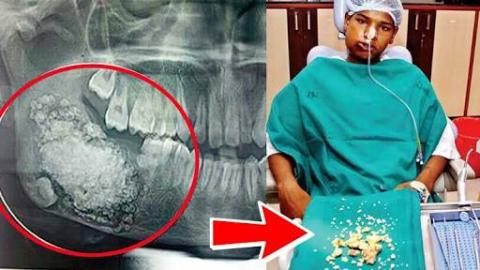232 Teeth Removed From 17-Year Old Indian Boy's Mouth