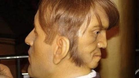 Meet The Only Man Born With Two Face In The World