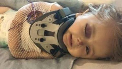 This Brave 6-Year-Old's Bones Are So Fragile They 'Break In The Wind'